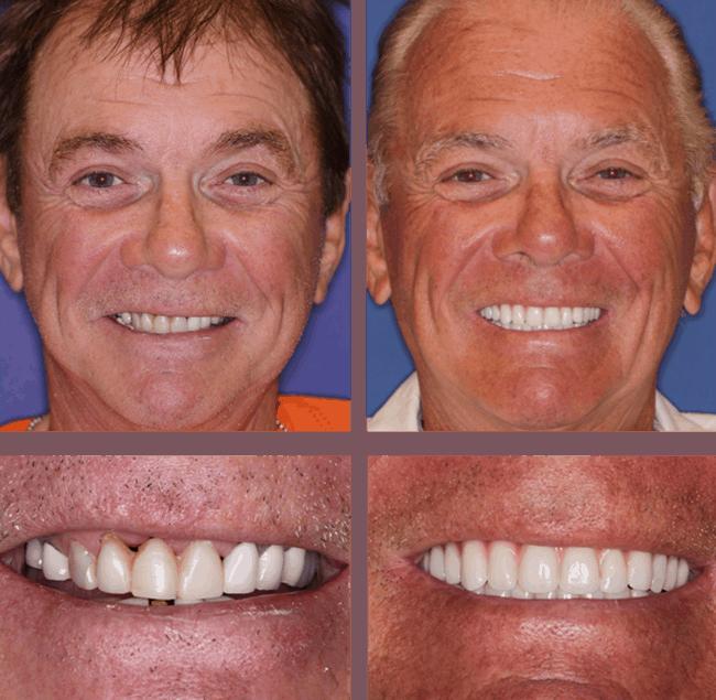 Teeth Next Day in Palm Beach Gardens, FL