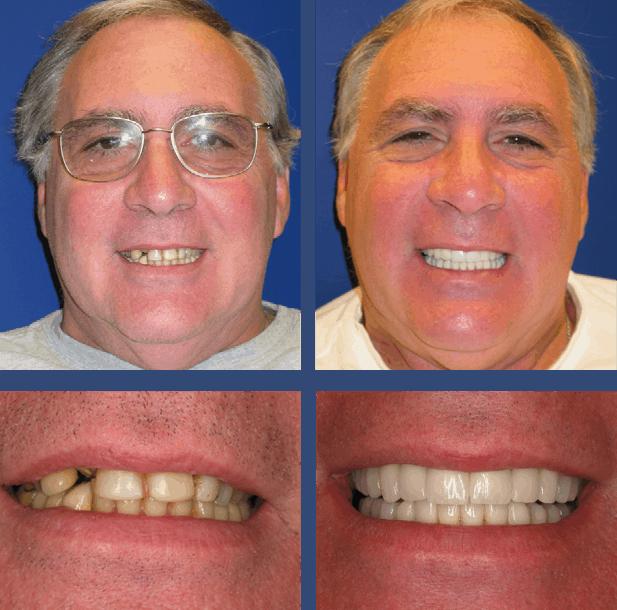 George - Teeth Next Day in Palm Beach Gardens, FL