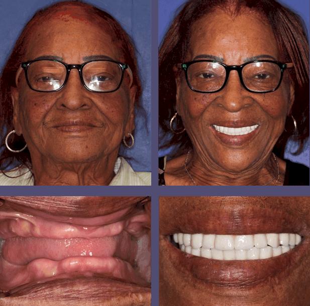 Mary - Teeth Next Day in Palm Beach Gardens, FL