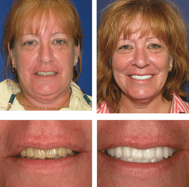 Sharon - Teeth Next Day in Palm Beach Gardens, FL